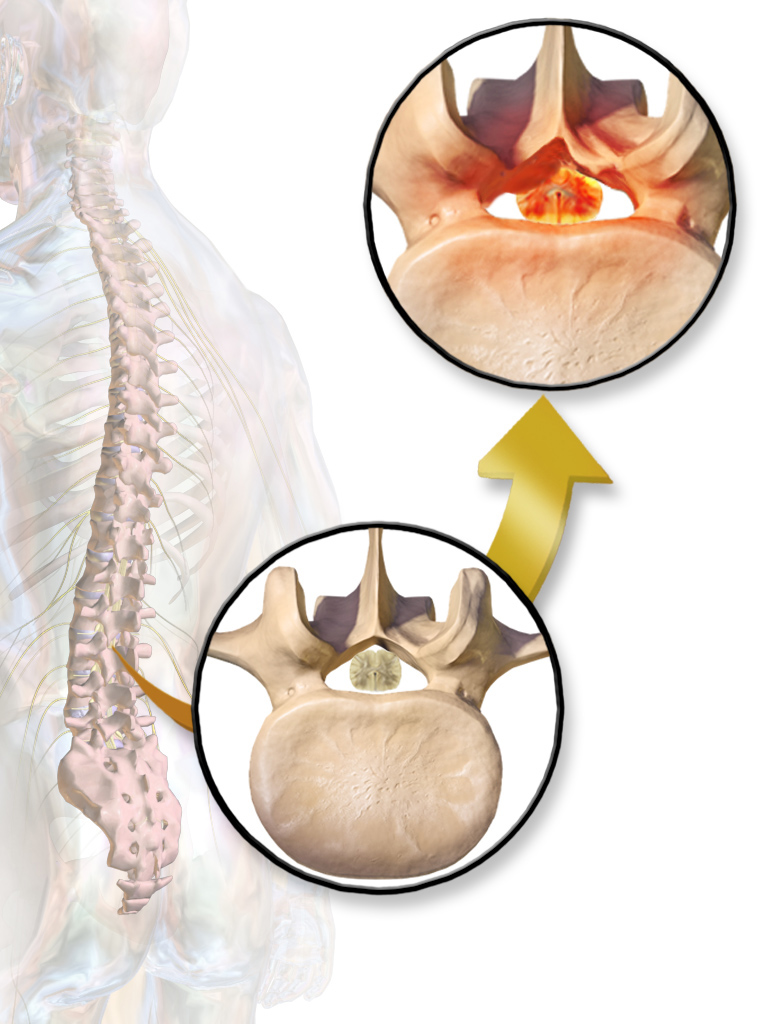 Minimally Invasive Lumbar Decompression